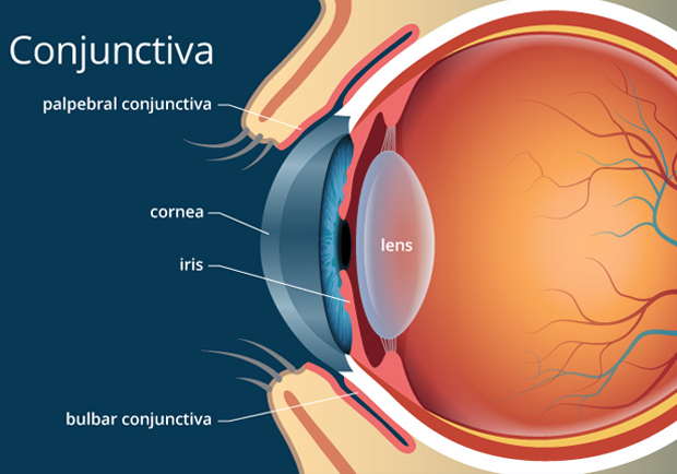 Best Eye Hospital in Bangalore for Cataract Operation