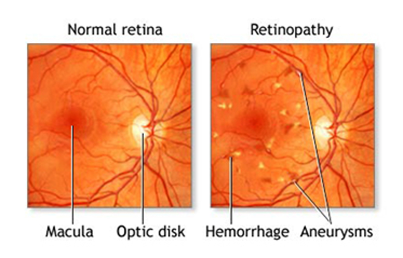 Best Eye Hospital in Bangalore for Retina